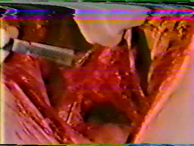 Young Female Dissection Autopsy 684